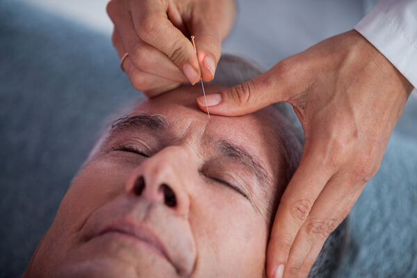 Man gets acupuncture treatment on his forehead